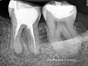 rentgen - stomatolog